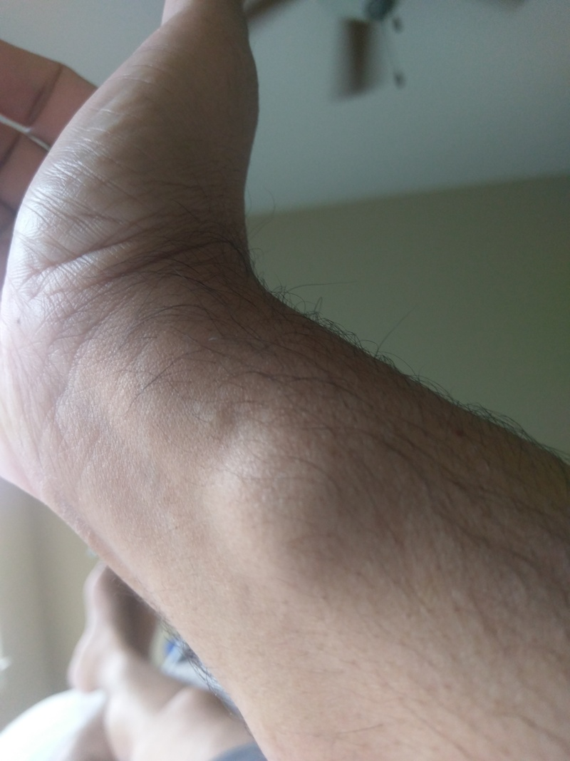 right arm_large_lipoma_after1week.jpg