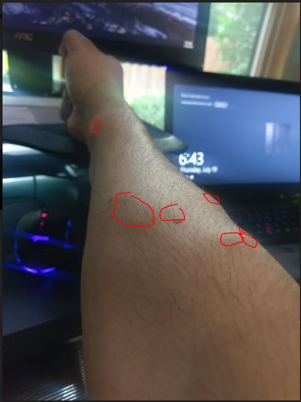 right_arm_7_19_18_marked.JPG
