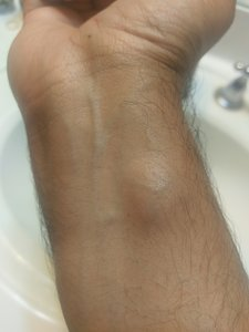 Right arm big lipoma