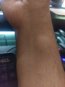 Right arm large lipoma