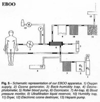extracorporeal_blood_oxygenation_ozonation_eboo.jpg